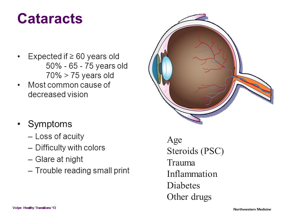 Volpe Healthy Transitions '13 Cataracts Expected if ≥ 60 years old 50% - 65 - 75 years old 70% > 75 years old Most common cause of decreased vision Sy