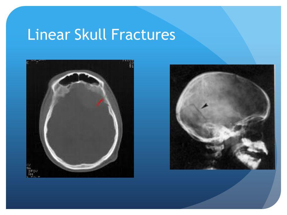 Linear Skull Fractures