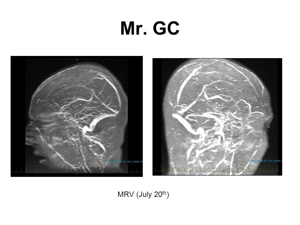 Mr. GC MRV (July 20 th )