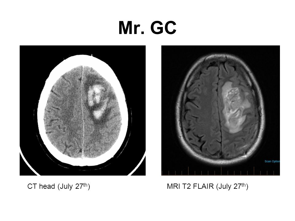 Mr. GC CT head (July 27 th )MRI T2 FLAIR (July 27 th )