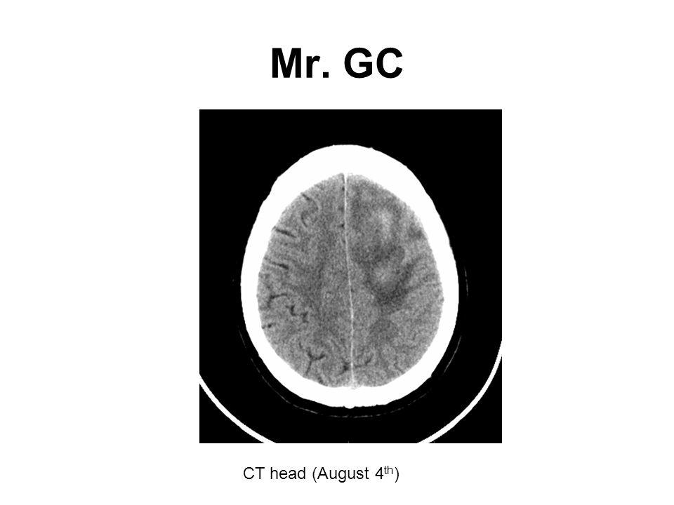 Mr. GC CT head (August 4 th )