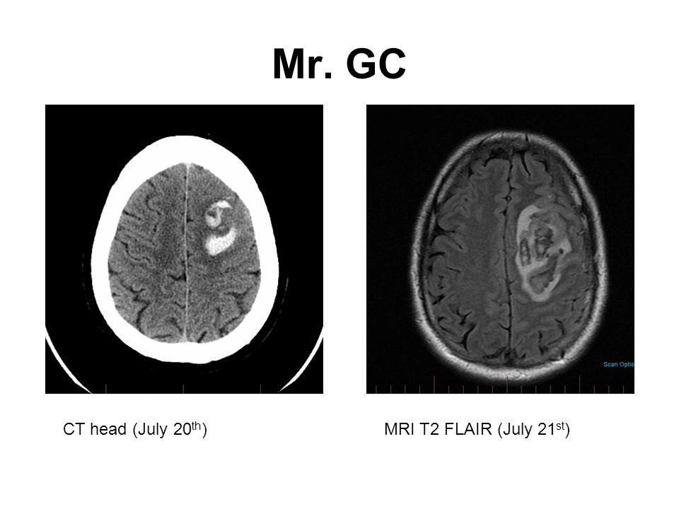 Mr. GC CT head (July 20 th )MRI T2 FLAIR (July 21 st )
