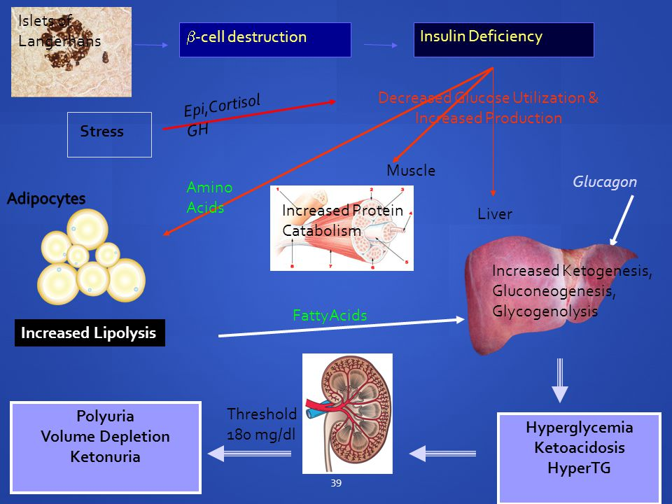  -cell destruction Insulin Deficiency Muscle Liver Decreased Glucose Utilization & Increased Production Glucagon Increased Lipolysis Hyperglycemia Ketoacidosis HyperTG Polyuria Volume Depletion Ketonuria Amino Acids FattyAcids Stress Epi,Cortisol GH Threshold 180 mg/dl 39 Increased Ketogenesis, Gluconeogenesis, Glycogenolysis Islets of Langerhans Increased Protein Catabolism