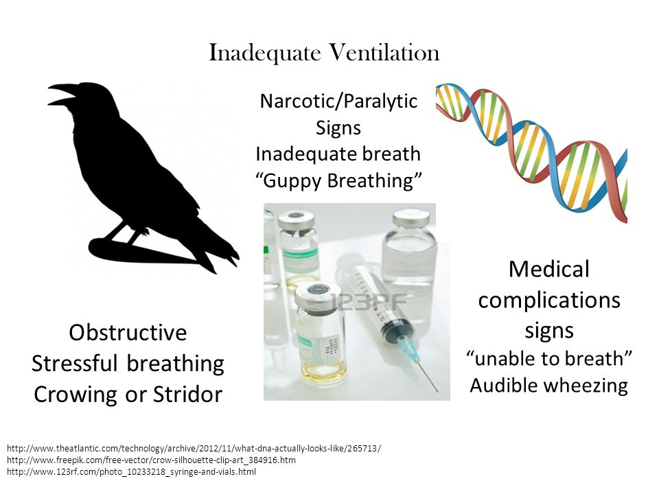 Inadequate Ventilation http://www.theatlantic.com/technology/archive/2012/11/what-dna-actually-looks-like/265713/ http://www.freepik.com/free-vector/c
