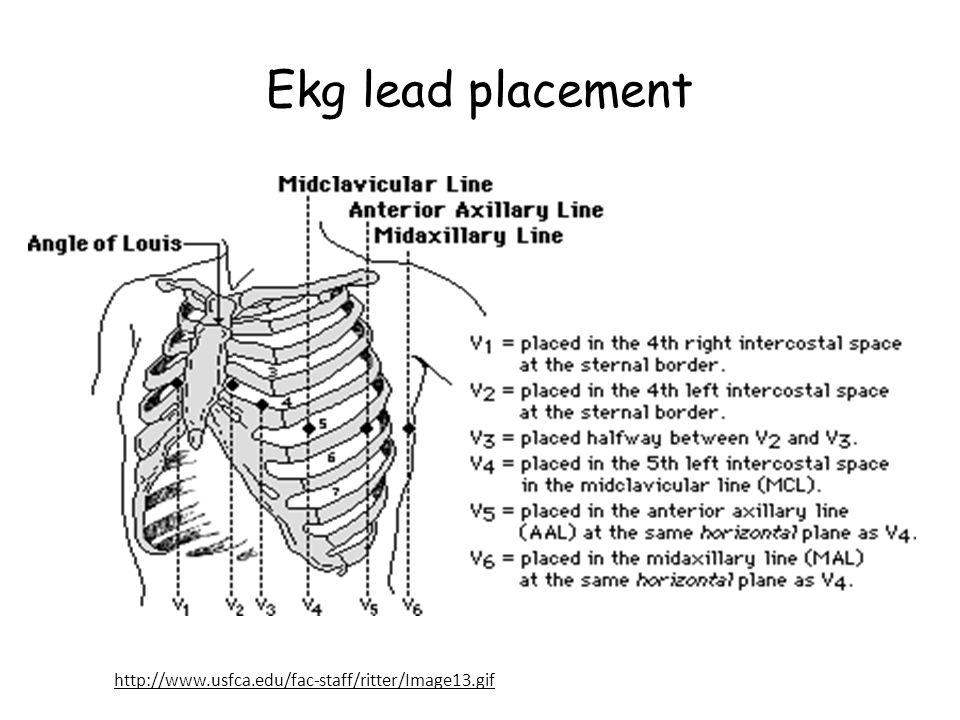 Ekg lead placement http://www.usfca.edu/fac-staff/ritter/Image13.gif