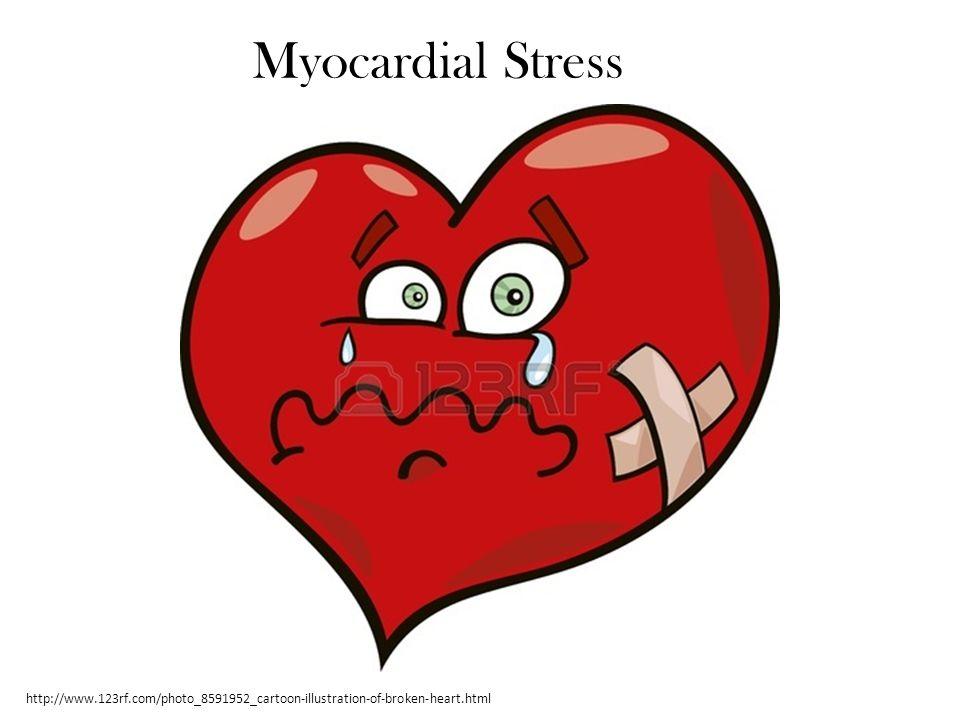 http://www.123rf.com/photo_8591952_cartoon-illustration-of-broken-heart.html Myocardial Stress