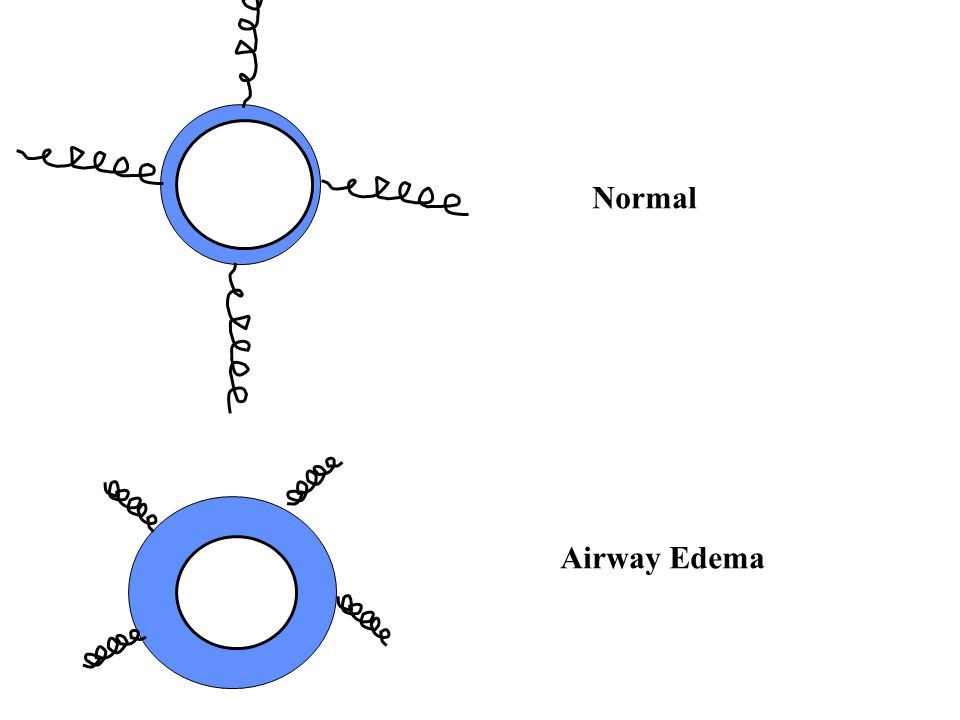 Normal Airway Edema