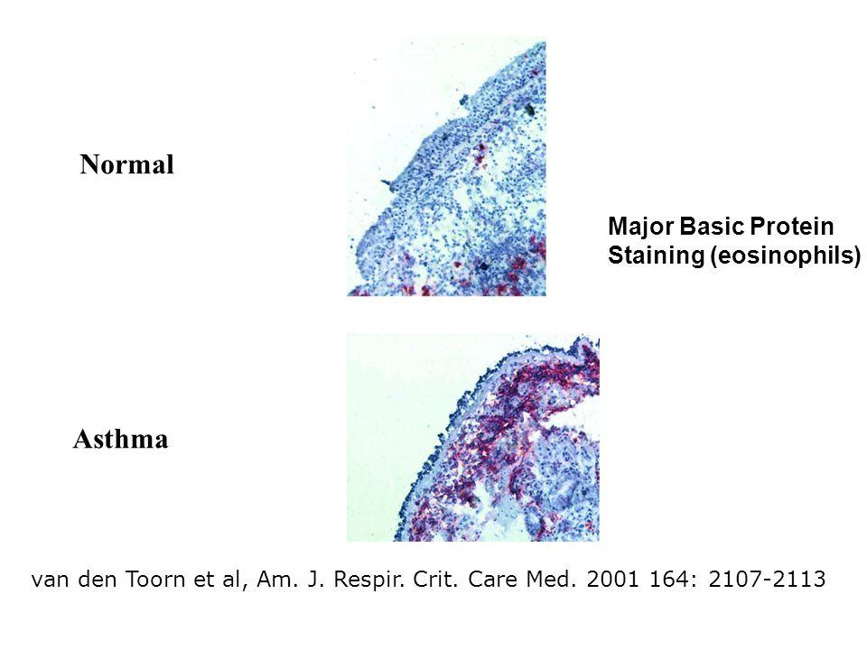 van den Toorn et al, Am. J. Respir. Crit. Care Med. 2001 164: 2107-2113 Normal Asthma Major Basic Protein Staining (eosinophils)