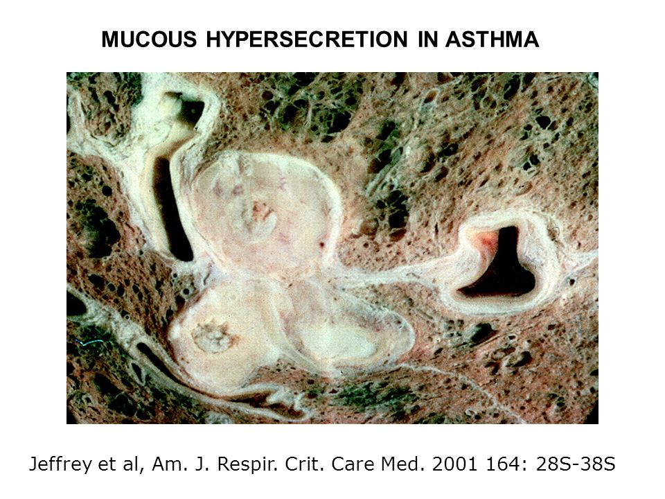 Jeffrey et al, Am. J. Respir. Crit. Care Med. 2001 164: 28S-38S MUCOUS HYPERSECRETION IN ASTHMA