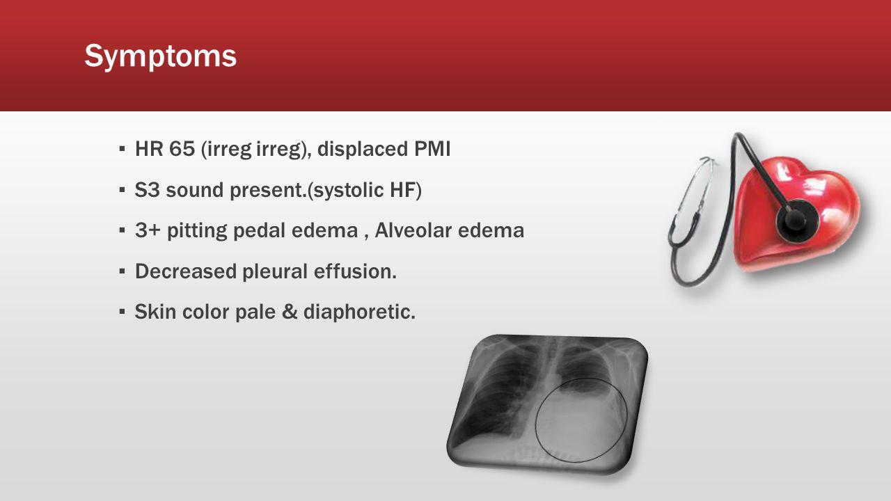 Symptoms ▪ HR 65 (irreg irreg), displaced PMI ▪ S3 sound present.(systolic HF) ▪ 3+ pitting pedal edema, Alveolar edema ▪ Decreased pleural effusion.
