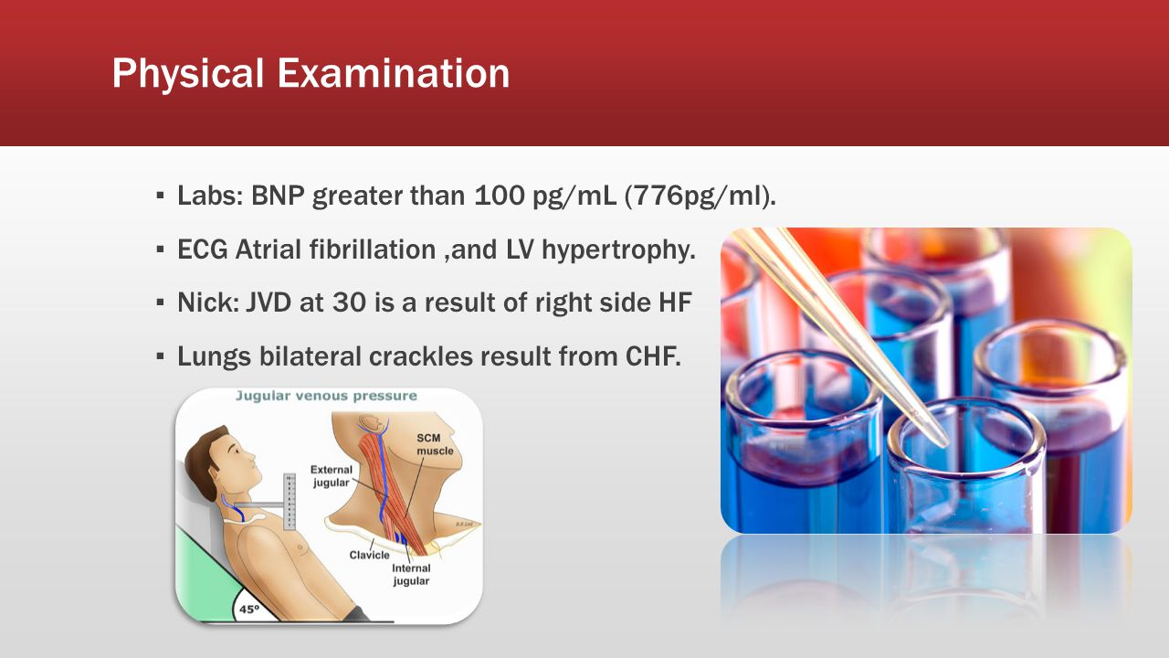 Physical Examination ▪ Labs: BNP greater than 100 pg/mL (776pg/ml). ▪ ECG Atrial fibrillation,and LV hypertrophy. ▪ Nick: JVD at 30 is a result of rig