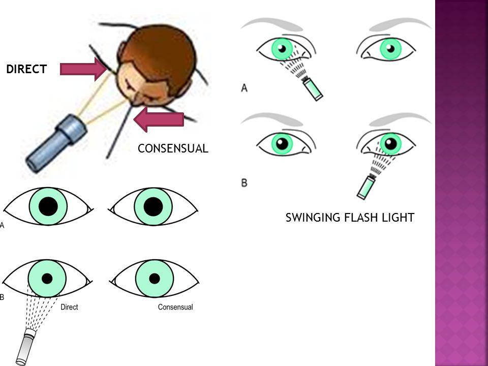 DIRECT CONSENSUAL SWINGING FLASH LIGHT
