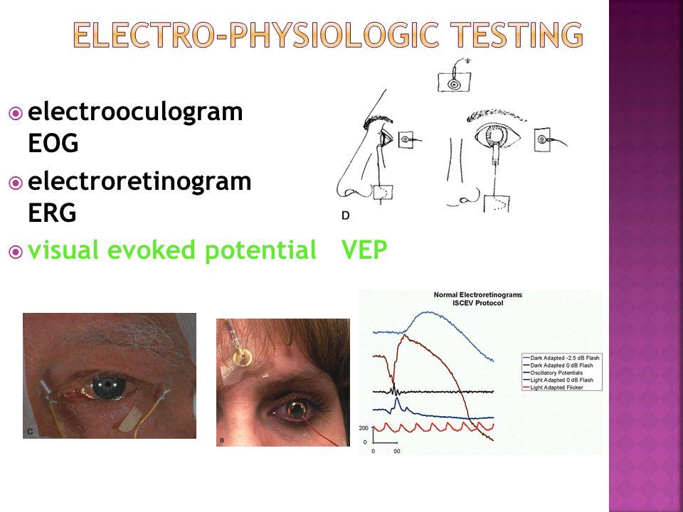  electrooculogram EOG  electroretinogram ERG  visual evoked potential VEP