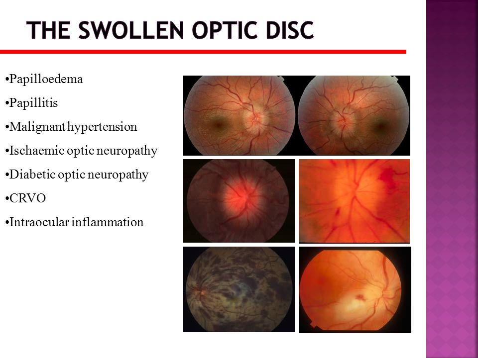 Papilloedema Papillitis Malignant hypertension Ischaemic optic neuropathy Diabetic optic neuropathy CRVO Intraocular inflammation