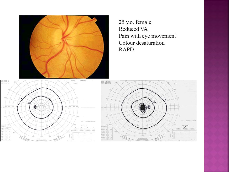 25 y.o. female Reduced VA Pain with eye movement Colour desaturation RAPD