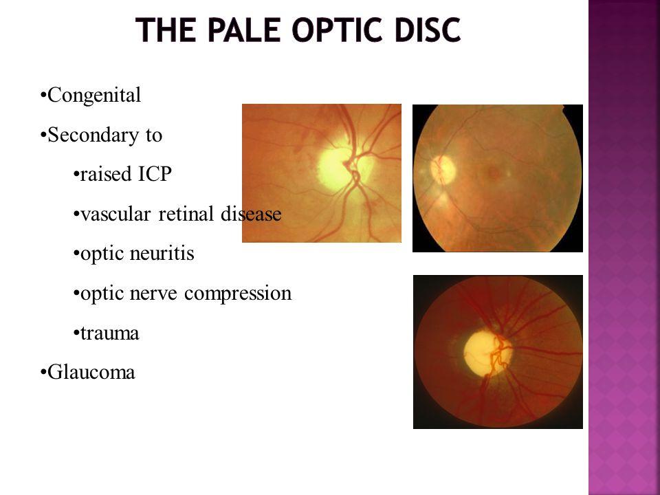 Congenital Secondary to raised ICP vascular retinal disease optic neuritis optic nerve compression trauma Glaucoma