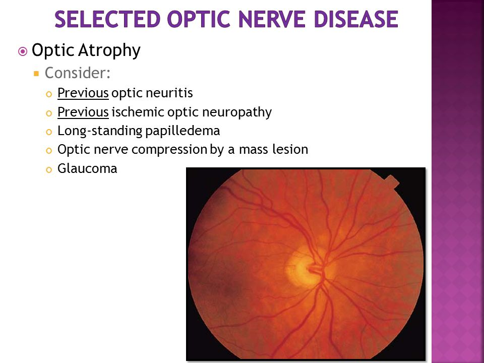  Optic Atrophy  Consider: Previous optic neuritis Previous ischemic optic neuropathy Long-standing papilledema Optic nerve compression by a mass les