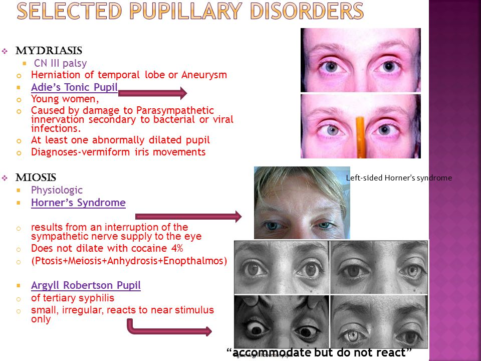  Mydriasis  CN III palsy Herniation of temporal lobe or Aneurysm  Adie's Tonic Pupil Young women, Caused by damage to Parasympathetic innervation s