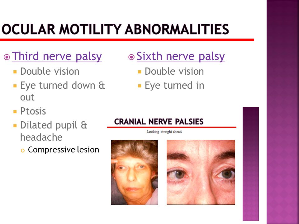  Third nerve palsy  Double vision  Eye turned down & out  Ptosis  Dilated pupil & headache Compressive lesion  Sixth nerve palsy  Double vision