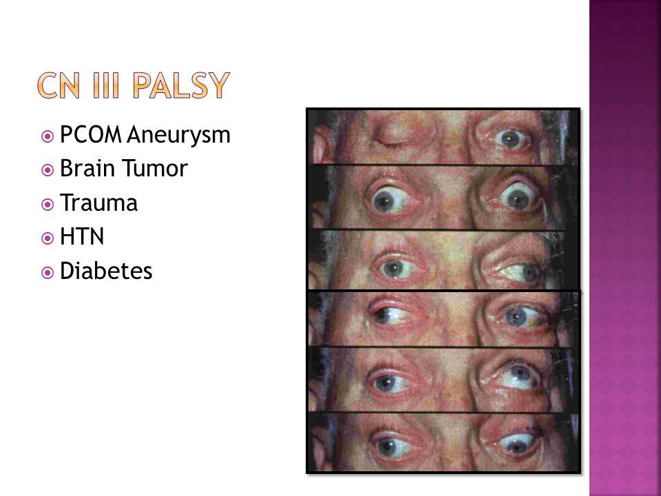  PCOM Aneurysm  Brain Tumor  Trauma  HTN  Diabetes