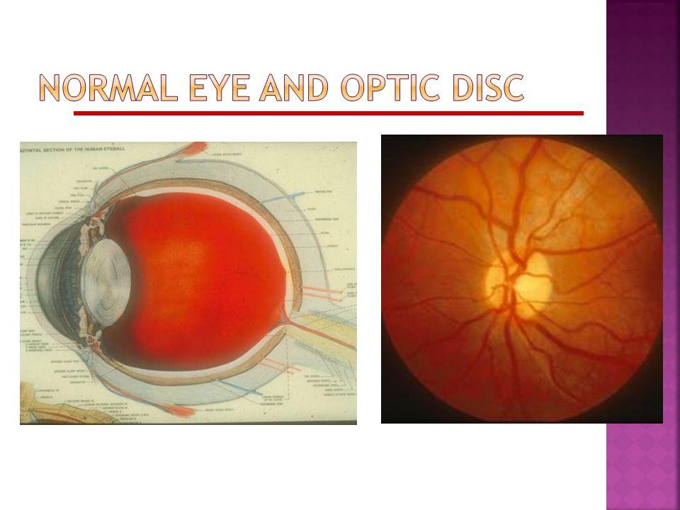 Congenital Anomalous Disc Elevation  Absence of edema, hemorrhage  Presence of SVP  Consider: Optic disc drusen Hyperopia