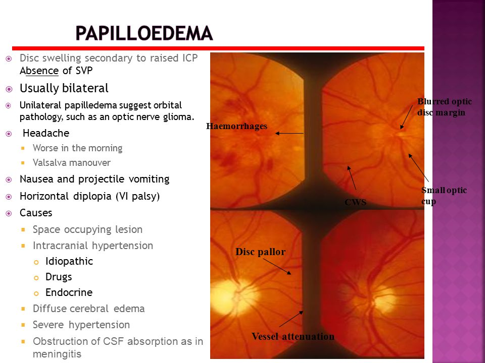  Disc swelling secondary to raised ICP Absence of SVP  Usually bilateral  Unilateral papilledema suggest orbital pathology, such as an optic nerve