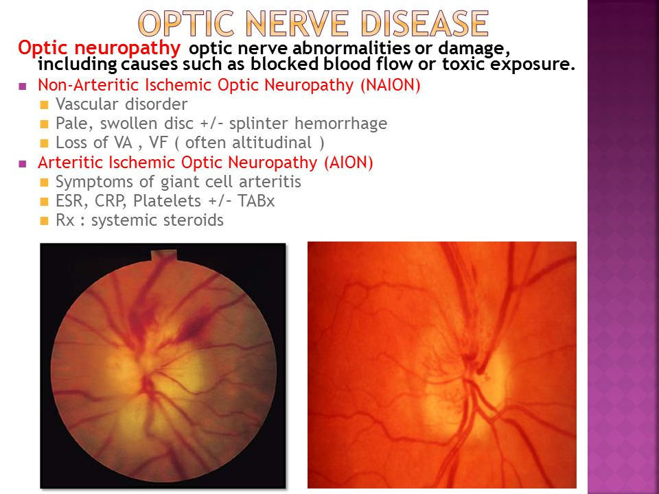 Optic neuropathy optic nerve abnormalities or damage, including causes such as blocked blood flow or toxic exposure. Non-Arteritic Ischemic Optic Neur