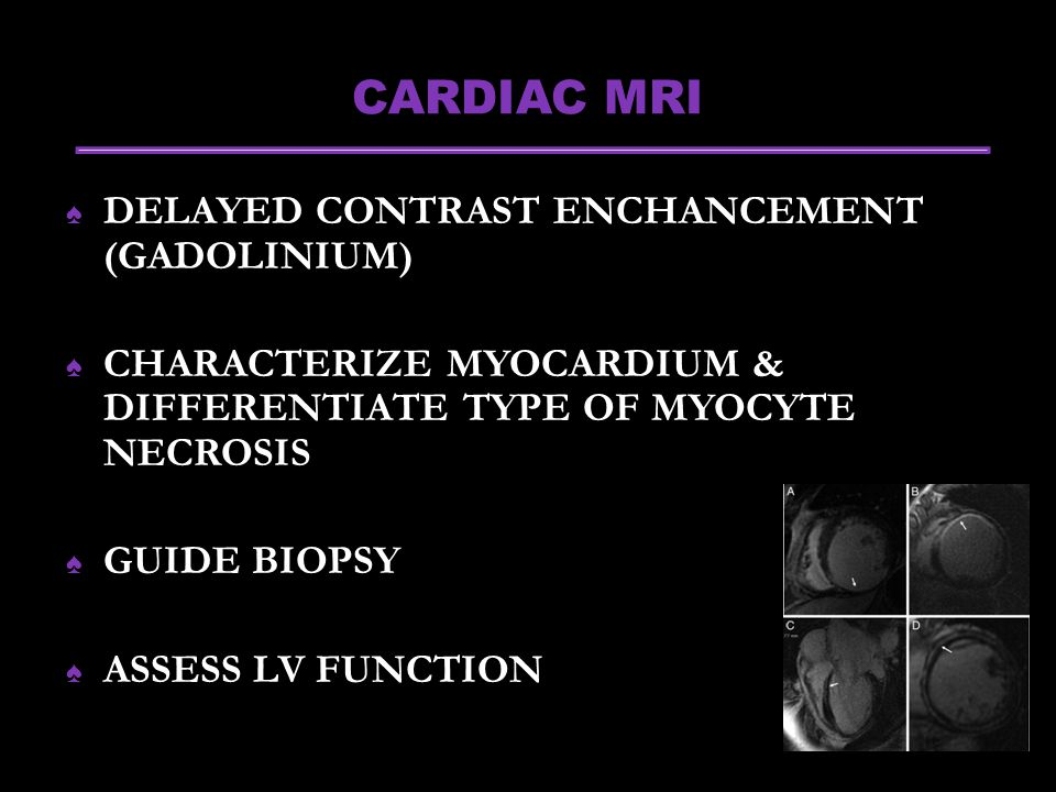 CARDIAC MRI ♠ DELAYED CONTRAST ENCHANCEMENT (GADOLINIUM) ♠ CHARACTERIZE MYOCARDIUM & DIFFERENTIATE TYPE OF MYOCYTE NECROSIS ♠ GUIDE BIOPSY ♠ ASSESS LV