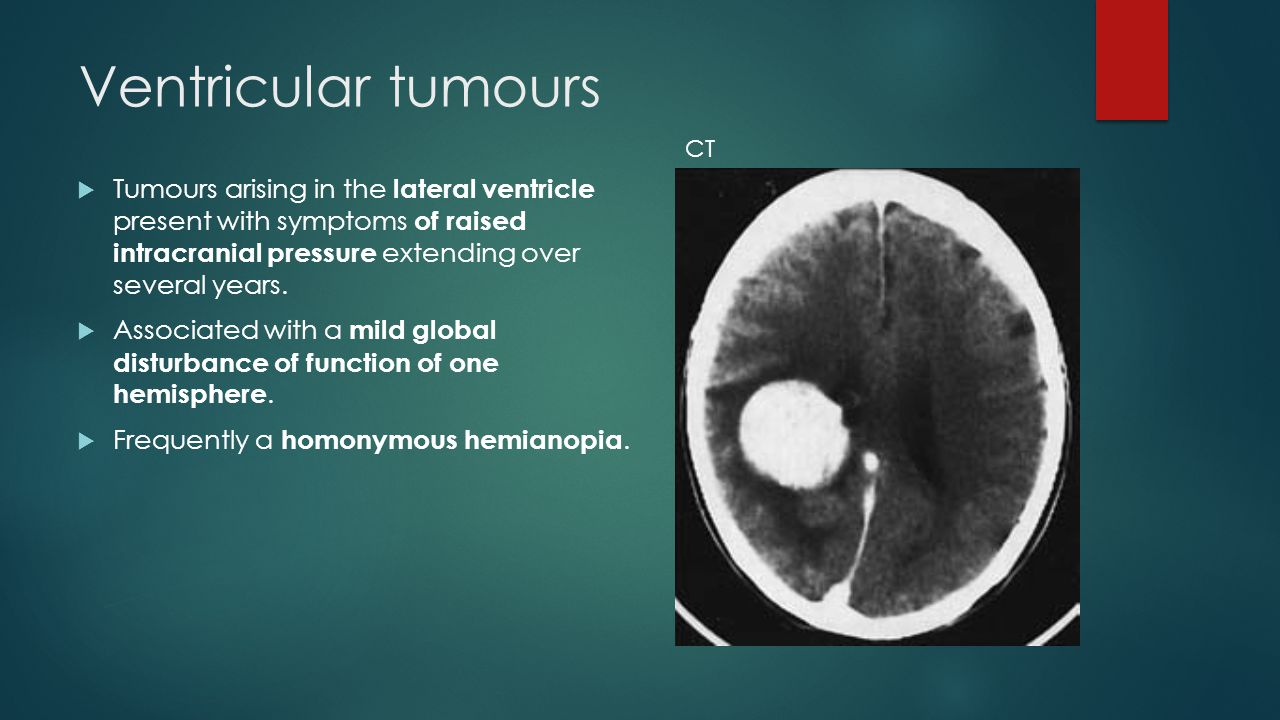Ventricular tumours  Tumours arising in the lateral ventricle present with symptoms of raised intracranial pressure extending over several years.  A