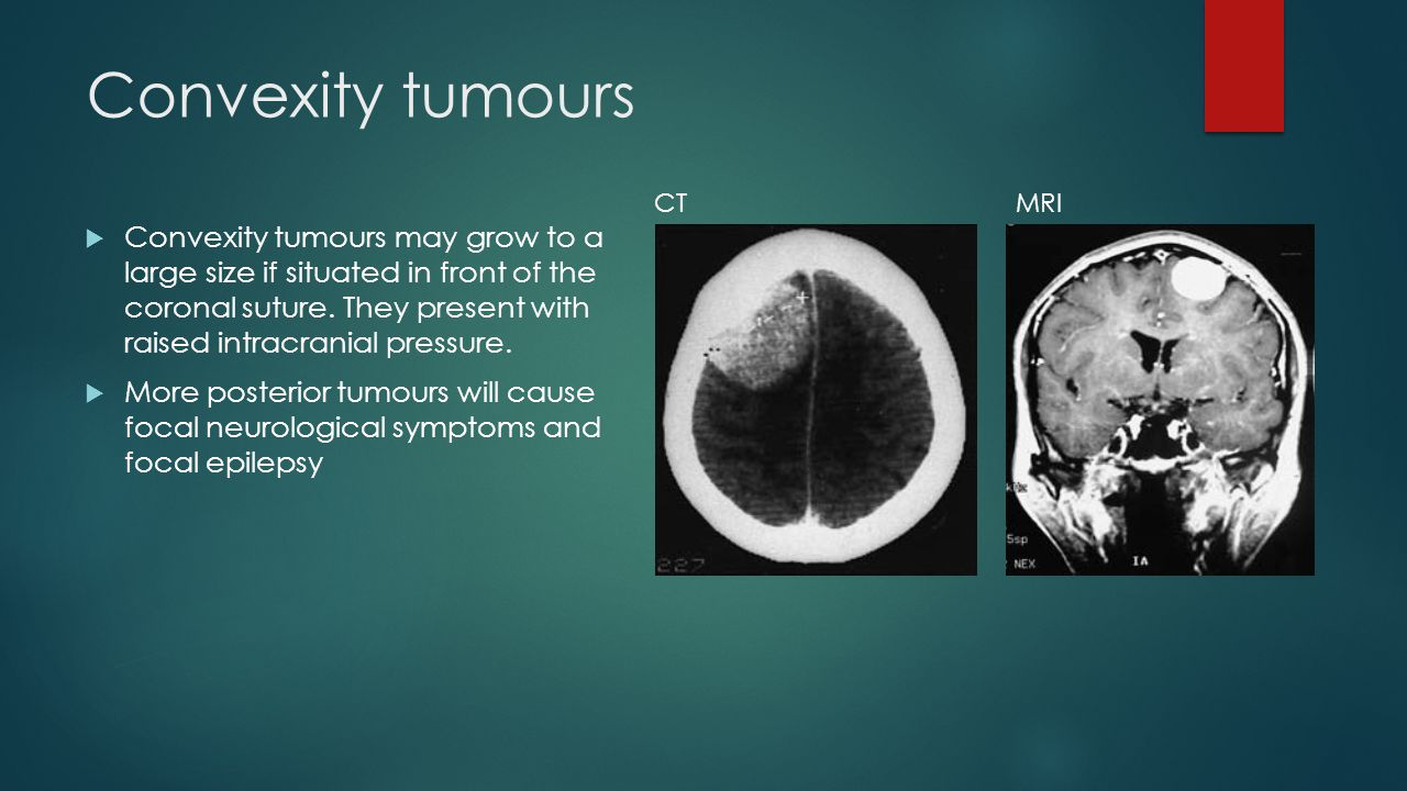 Convexity tumours  Convexity tumours may grow to a large size if situated in front of the coronal suture. They present with raised intracranial press