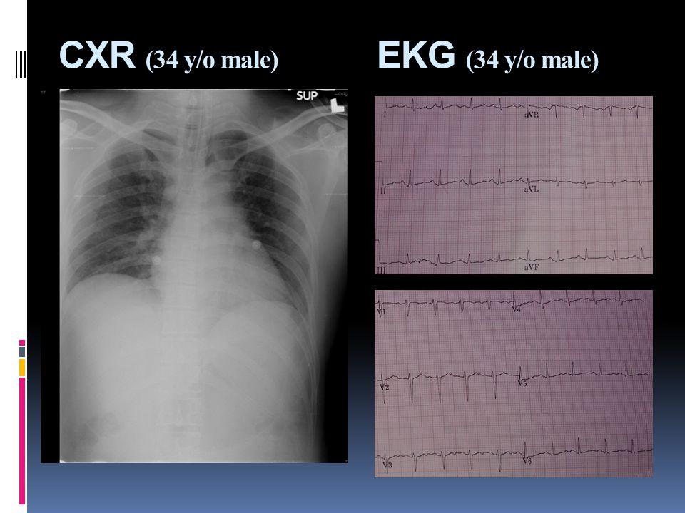 CXR (34 y/o male) EKG (34 y/o male)