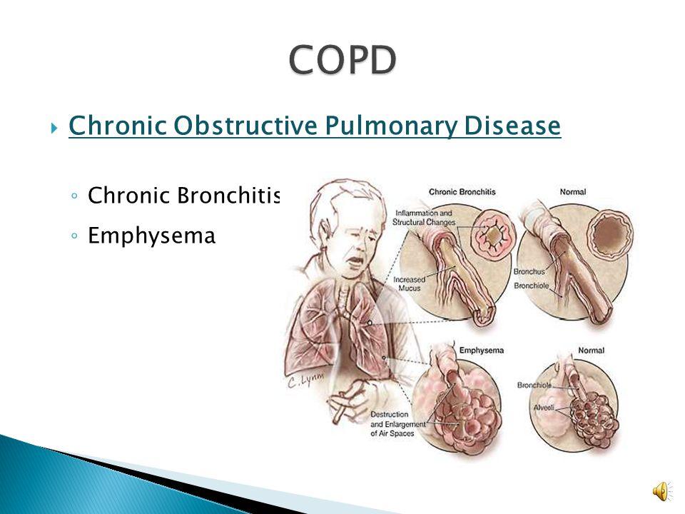  Consider other causes for wheezing ◦ Pneumonia ◦ COPD ◦ Foreign body aspiration ◦ Heart failure ◦ Pneumothorax ◦ Pulmonary embolism ◦ Toxic inhalati