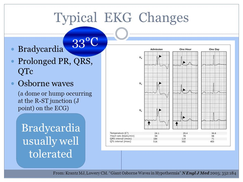 Typical EKG Changes Bradycardia Prolonged PR, QRS, QTc Osborne waves (a dome or hump occurring at the R-ST junction (J point) on the ECG) From: Krantz MJ, Lowery CM.