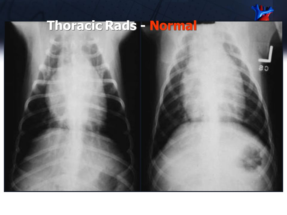 Why is it so difficult to evaluate cardiac and chamber size on radiographs? Comparing heart size to lung field size doesn't work –Dogs of different co