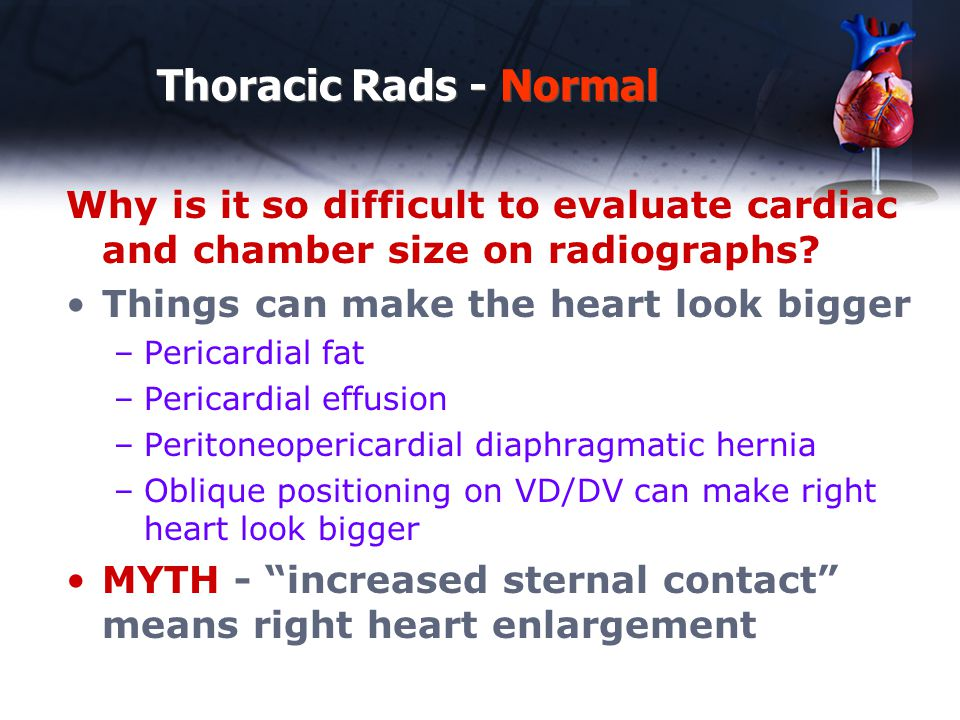 Thoracic Rads - Normal Why is it so difficult to evaluate cardiac and chamber size on radiographs? Things can make the heart look bigger –Pericardial