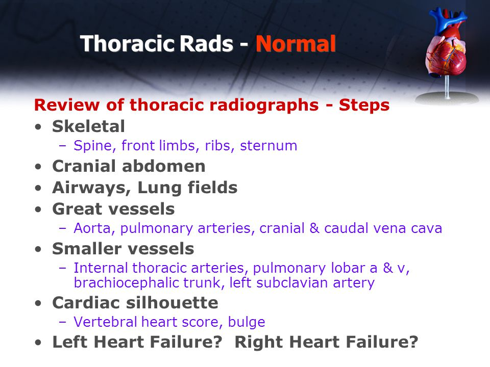 Thoracic Rads - Normal Vertebral Heart Score Measure heart long axis –carina to the apex Measure heart short axis –Widest perpendicular to length Count vertebrae from cranial aspect T4 Add together Dogs – normal 8.5-10.5 Cats – normal 7-8