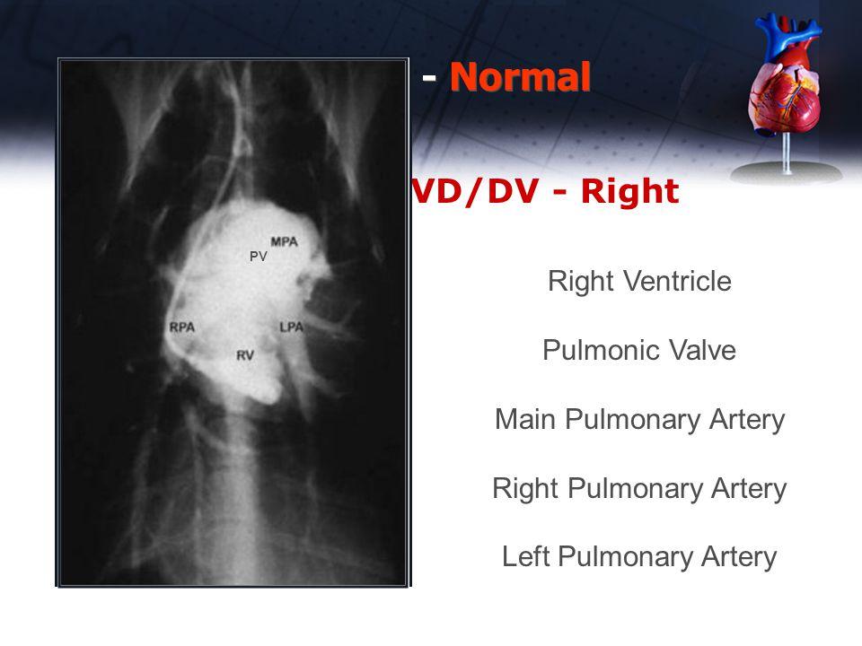 Heart Chambers – VD/DV - Right Thoracic Rads - Normal Right Ventricle Pulmonic Valve Main Pulmonary Artery Right Pulmonary Artery Left Pulmonary Arter