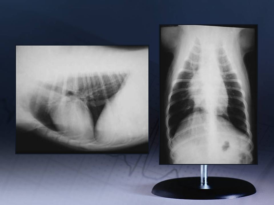 Thoracic Rads - Normal Why is it so difficult to evaluate cardiac and chamber size on radiographs.