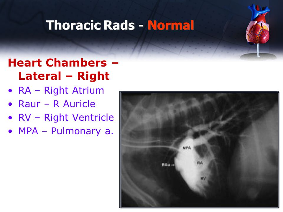Thoracic Rads - Normal Heart Chambers – Lateral – Right RA – Right Atrium Raur – R Auricle RV – Right Ventricle MPA – Pulmonary a.