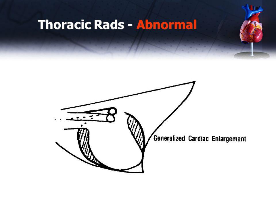 Thoracic Rads - Abnormal