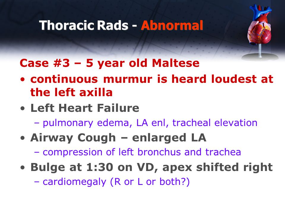 Thoracic Rads - Abnormal Case #3 – 5 year old Maltese continuous murmur is heard loudest at the left axilla Left Heart Failure –pulmonary edema, LA en