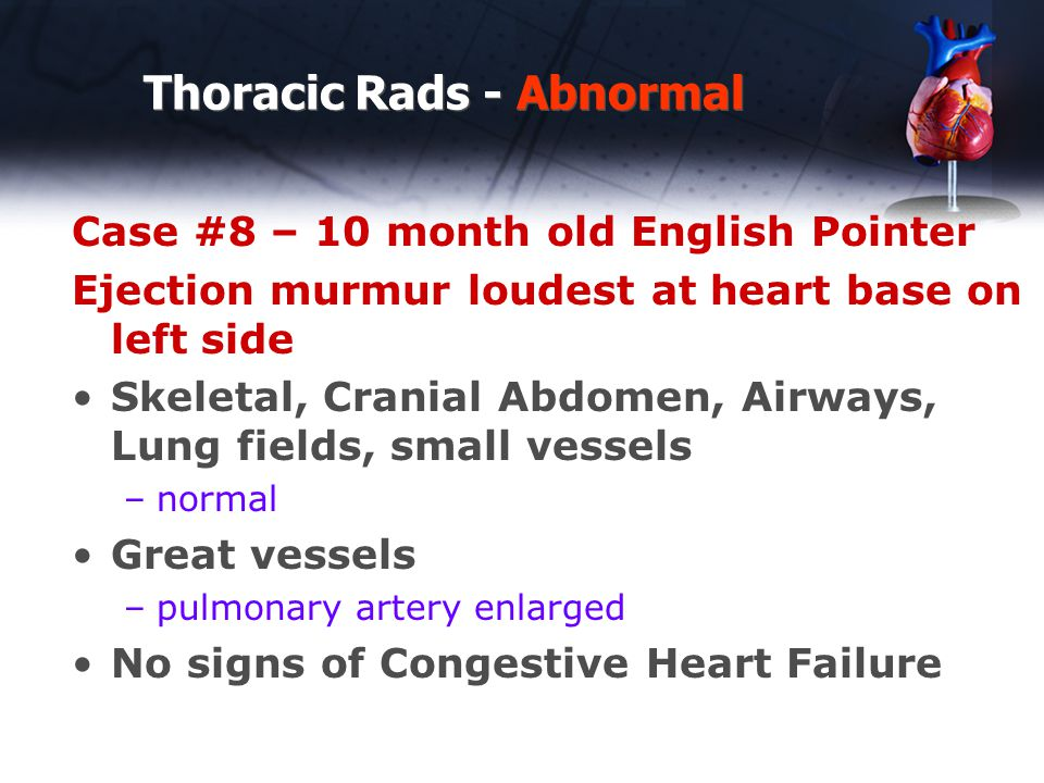 Thoracic Rads - Abnormal Case #8 – 10 month old English Pointer Ejection murmur loudest at heart base on left side Skeletal, Cranial Abdomen, Airways,