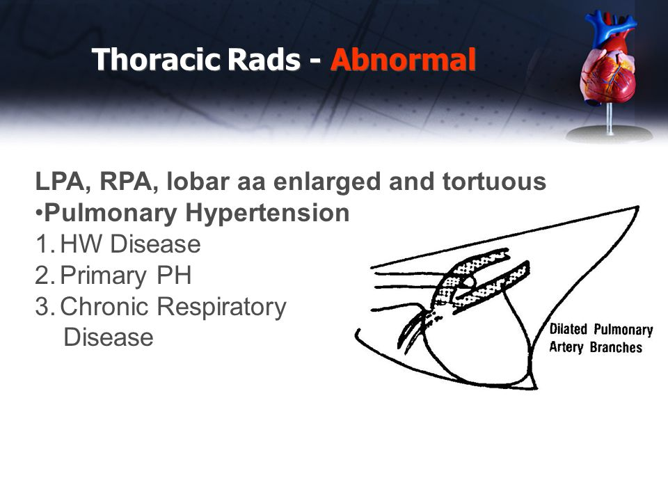 Thoracic Rads - Abnormal LPA, RPA, lobar aa enlarged and tortuous Pulmonary Hypertension 1.HW Disease 2.Primary PH 3.Chronic Respiratory Disease