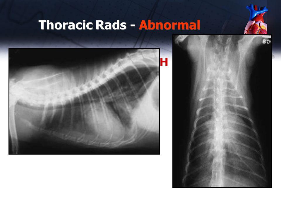 Thoracic Rads - Abnormal Case #11 – 2 yr old DSH cat Tachypnea
