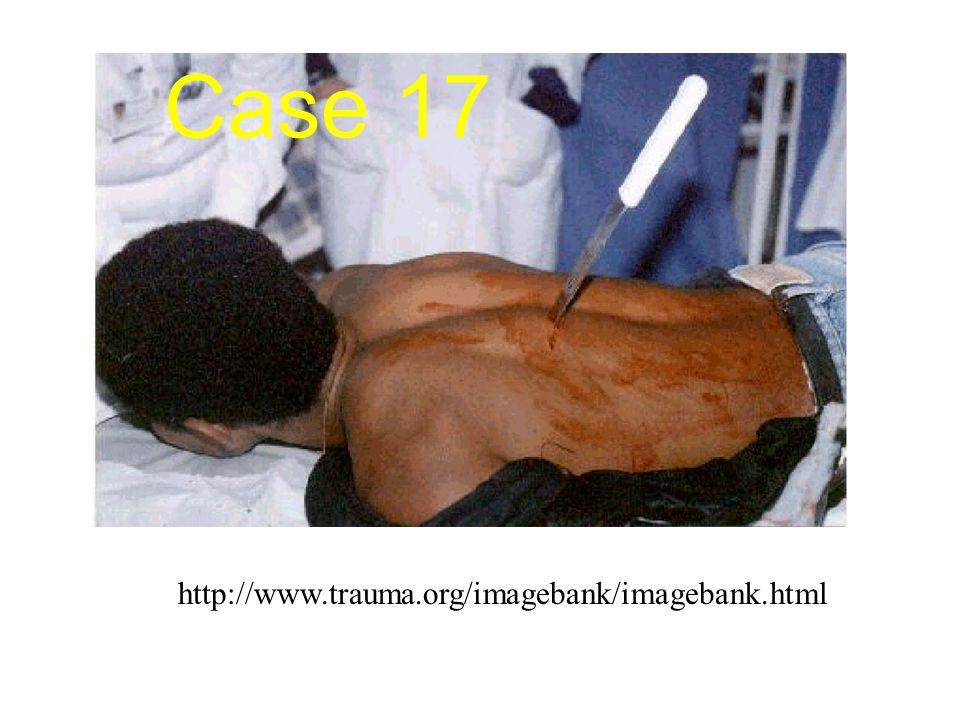 http://www.trauma.org/imagebank/imagebank.html Case 17