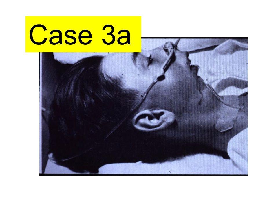 Case 3a