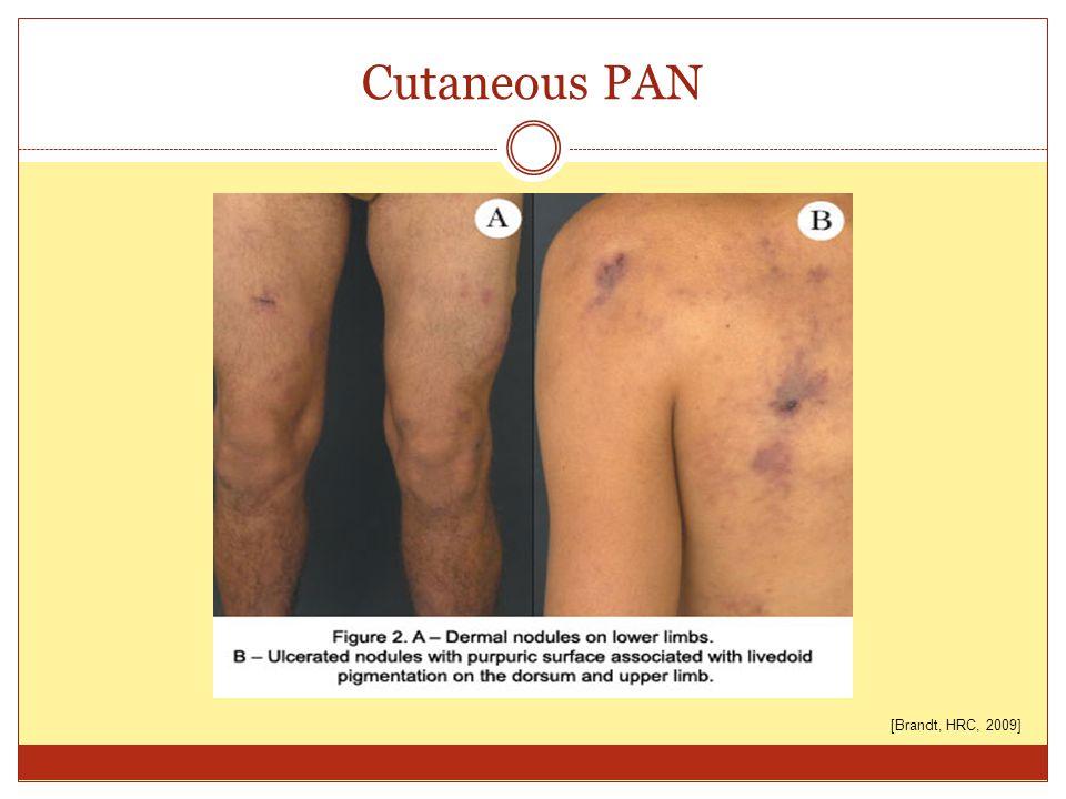 Cutaneous PAN [Brandt, HRC, 2009]