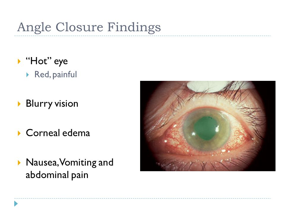 """Angle Closure Findings  """"Hot"""" eye  Red, painful  Blurry vision  Corneal edema  Nausea, Vomiting and abdominal pain"""
