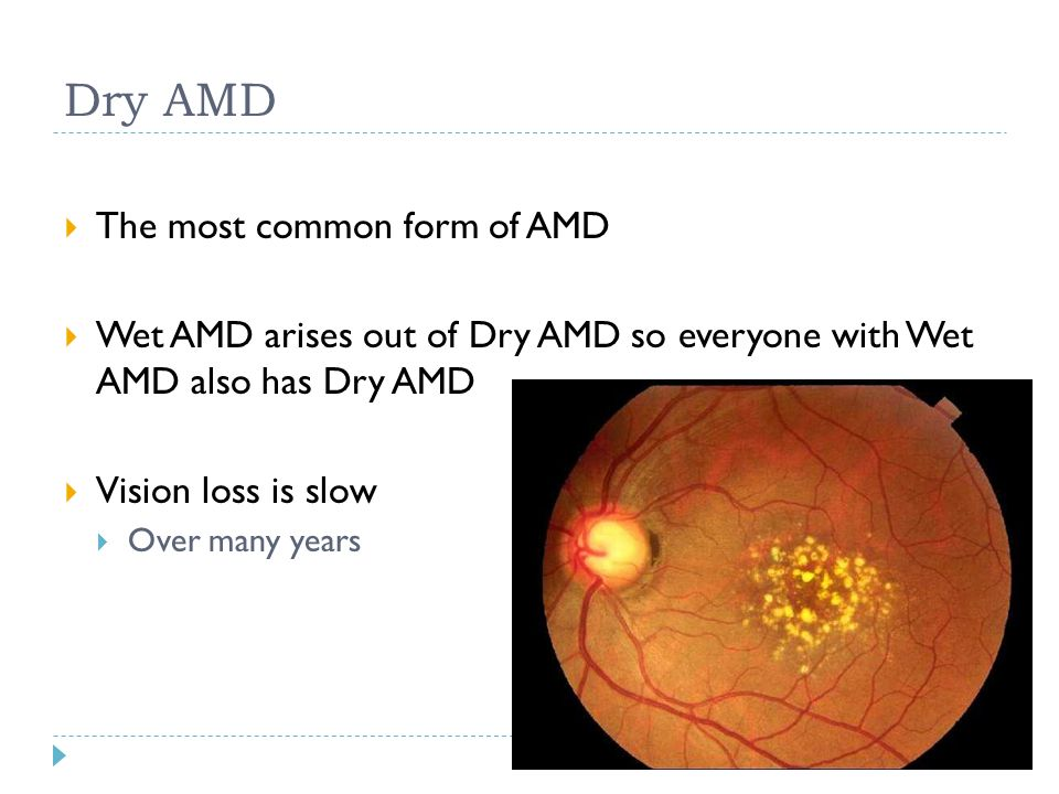Dry AMD  The most common form of AMD  Wet AMD arises out of Dry AMD so everyone with Wet AMD also has Dry AMD  Vision loss is slow  Over many year