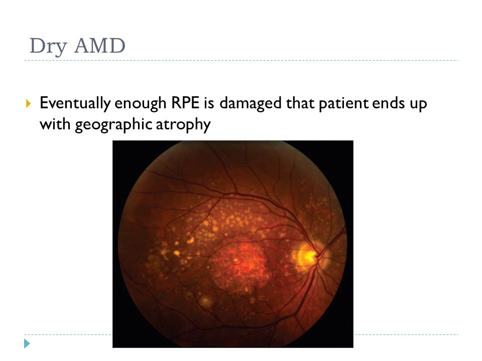 Dry AMD  Eventually enough RPE is damaged that patient ends up with geographic atrophy